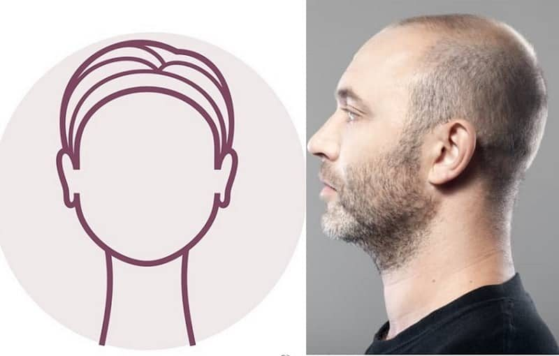 Bald Men with Beard for Round Faces