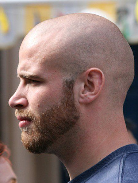 Short Beard with Bald