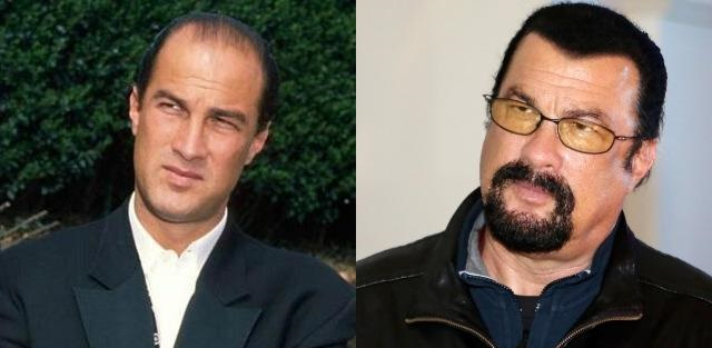 Steven seagal hair before after