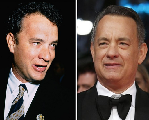 tom hanks hair transplant