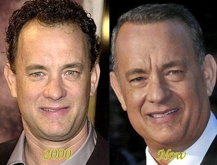 Hair Transplantation Of Tom Hanks