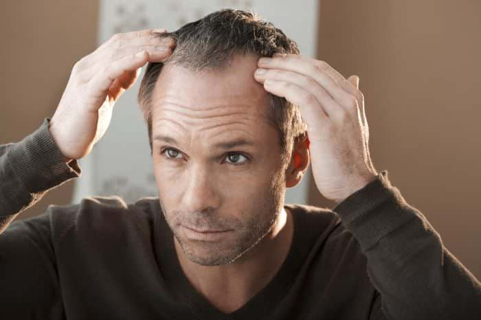 How To Manage Balding Hair?