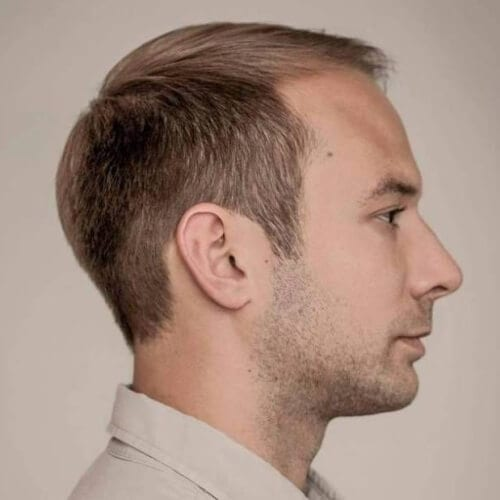 Neatly Combed Hairstyles for Balding Men