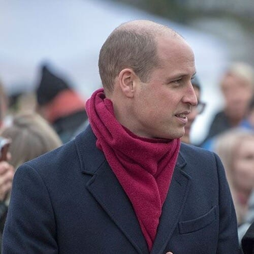 Prince William Haircut for Bald Spots on Crown